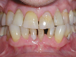 A picture of teeth that are broken and stained.