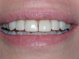 A picture of the same teeth after the space has been closed by placing porcelain veneers