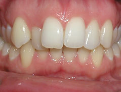 a picture of teeth that are crooked