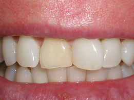 A picture of discolored and crooked teeth.