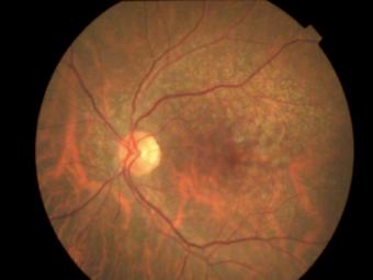 DMRI - Degeneração Macular | VistaClinic Oftalmologia