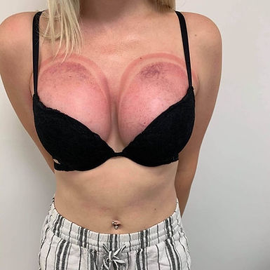 After Wonder Breast Lift phot