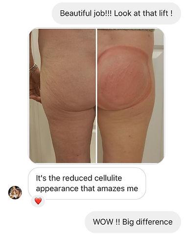 Butt lift & cellulite reduction.jpg