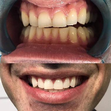 salon teeth whitening before & after Ottawa