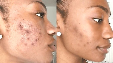 Microneedling before & after face skin results