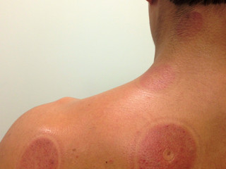 Myofascial Decompression Cupping Therapy (Part III)