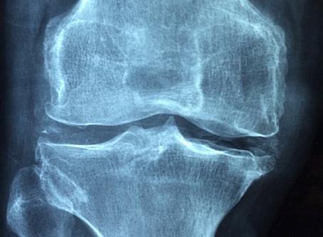 L'arthrose : blocages et désespoirs !