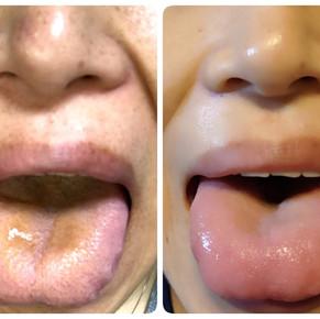 舌の状態みてますか?