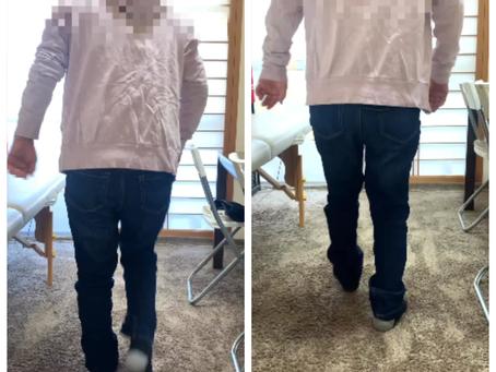 腰部脊柱管狭窄症はリハビリで改善するのか?!奈良で腰部脊柱管狭窄を改善できる整体は?!