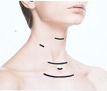 Professor Delbridge  thyroid surgeon Sydney thyroidectomy incision