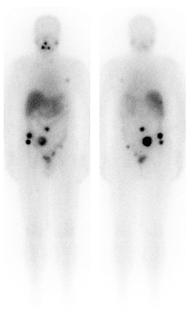Professor Delbridge thyroid surgeon Sydney Australia thyroid cancer radioactive iodine