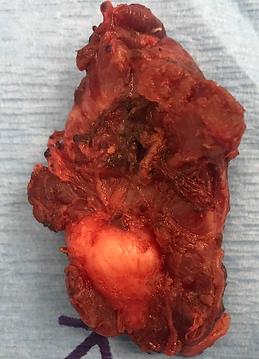 thyroid cancer delbridge surgeon.png
