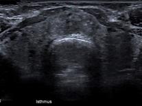 Ultrasound thyroid Delbridge.png