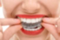 Aparelho dental invisivelem Campinas