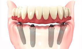 implante dentario preço