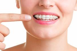 Aparelho dental estético em Campinas
