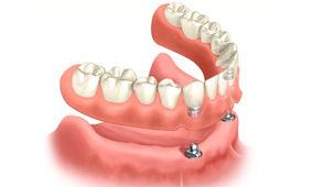 implante dentario imediato em campinas