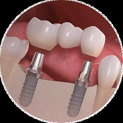 implante dentario doi