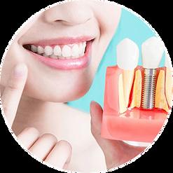 implant dentario