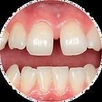 Aparelho dental transparente em Campinas