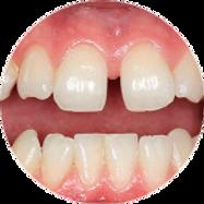 dentes com espaços