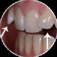 dentes apinhados