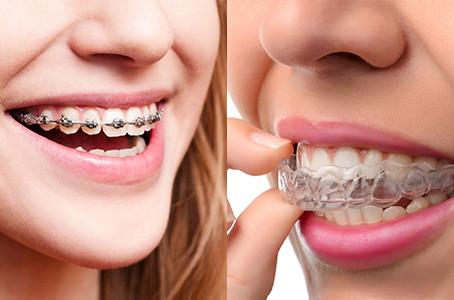A Nova Ortodontia: Aparelho Invisível Substituirá os Aparelhos Tradicionais em Uma Década.