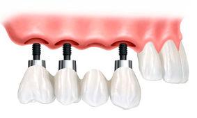 Implante dentario antes e depois