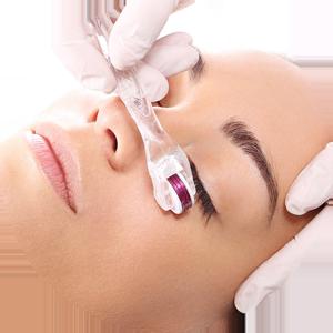 Microagulhamento facial em Campinas