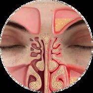 problems nasais