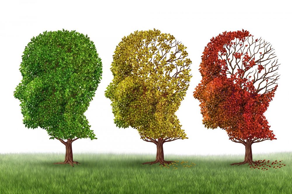 Mal de Alzheimer, uma doença neuro-degenerativa!