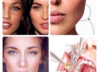 Bichectomia: Harmonização Facial