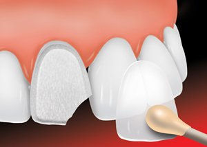 ada_dental_veneer_1_new.jpg