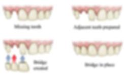 dental_bridge_design_steps.jpg
