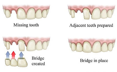 dental_bridge_design_steps.jpg