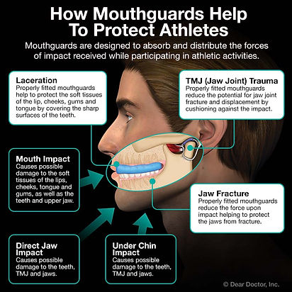 athletic-mouthguards.jpg