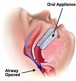 sleep-apnea-oral-device.jpg