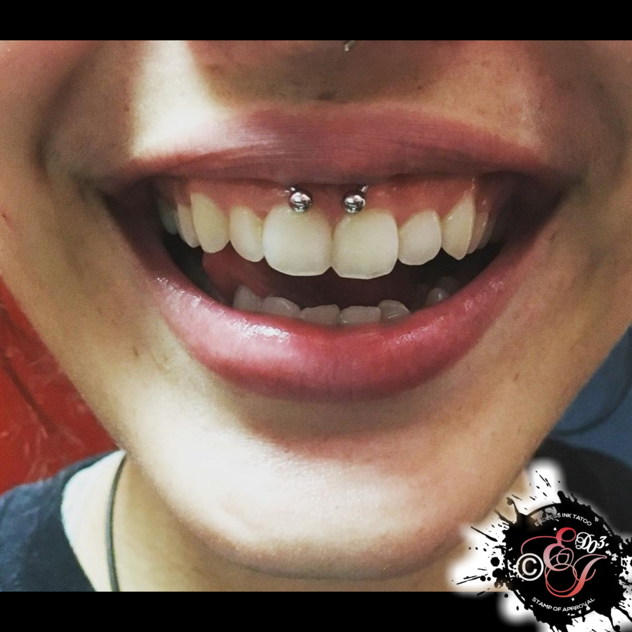Smiley Piercings