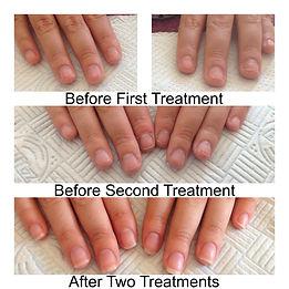 IBX Nail Treatments, IBX, Nails