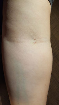 Vein used in Autohemotherapy