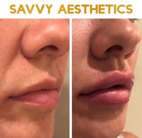 Lip Augumenation