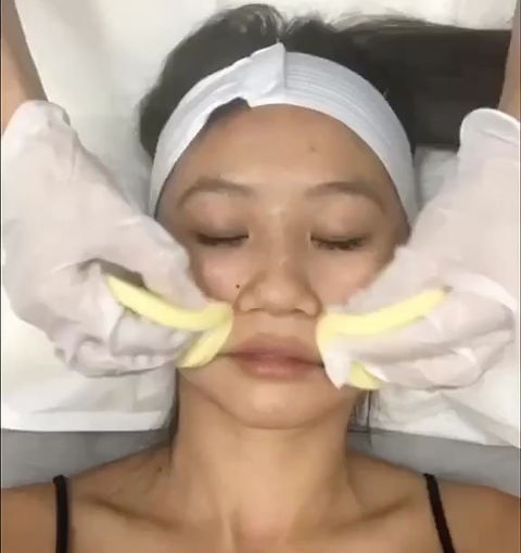 It's a short video of the proccess of getting a microneedling facial.