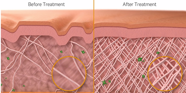 Before and after photo of the dermis after Cynosure treatment.