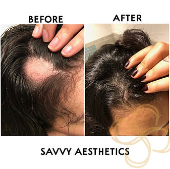 Before and after hair growth by using microneedling