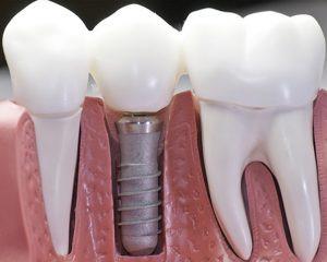 دورة أساسيات زراعة الأسنان (تركيا-فبراير-2019) سجل الآن !!