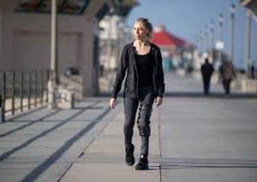 Slender young white woman walking along boardwalk with thigh-high brace on left leg.