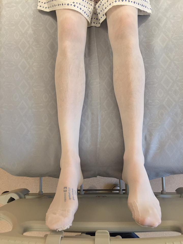 And these are his actual legs...