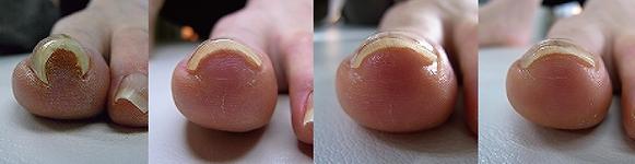巻爪症例写真1回目で②の状態