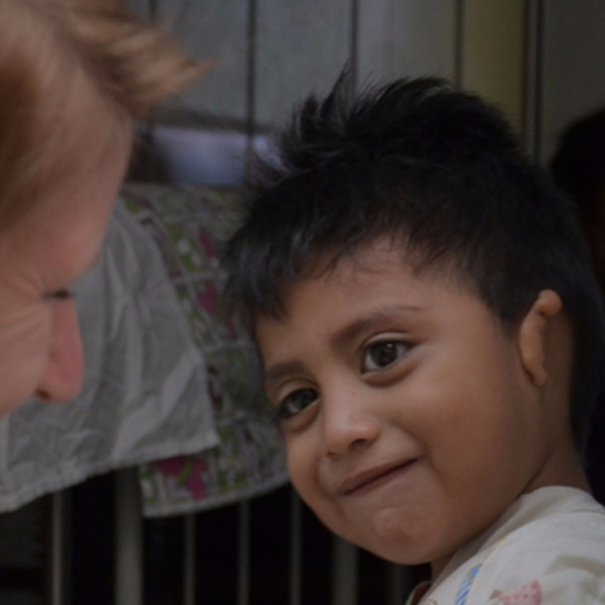 Kid with Microtia From Guatemala