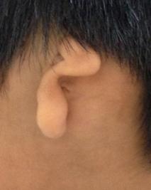 Closer Look at a Microtia Ear